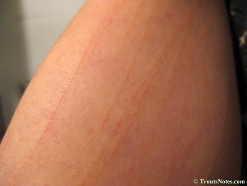 Flagellate rash